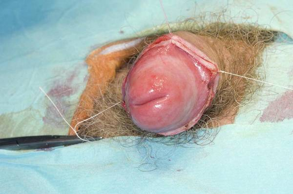Wall Art - Photograph - Penis Circumcision To Treat Phimosis by Dr P. Marazzi/science Photo Library