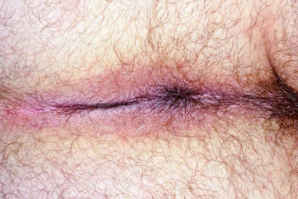 48 Wall Art - Photograph - Perianal Dermatitis by Dr P. Marazzi/science Photo Library