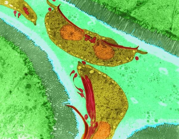 Wall Art - Photograph - Protozoan Intestine Infection (giardia Sp.) by Dennis Kunkel Microscopy/science Photo Library