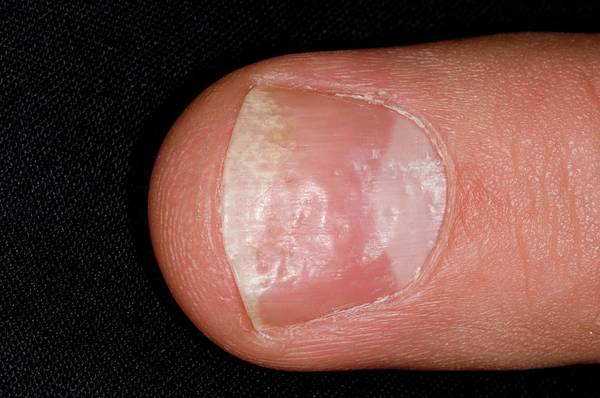Wall Art - Photograph - Psoriasis Of The Fingernail by Dr P. Marazzi/science Photo Library