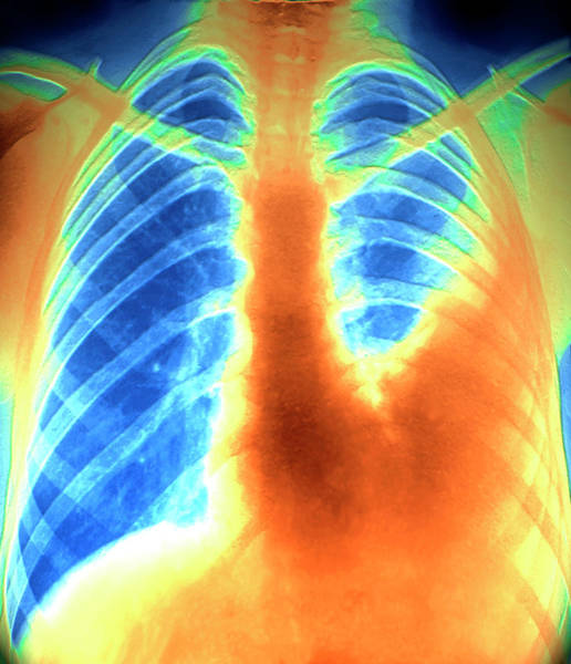 Radiograph Wall Art - Photograph - Pulmonary Embolism by Zephyr/science Photo Library
