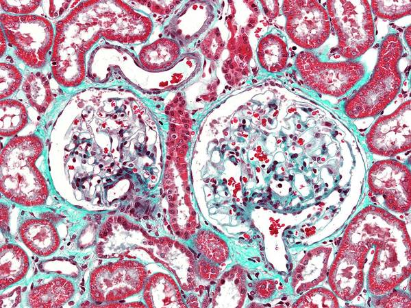 Microscopy Photograph - Renal Corpuscle by Microscape