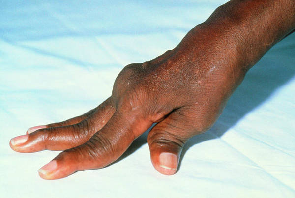 Swan Neck Photograph - Rheumatoid Arthritis In Hands Of Jamaican Patient by Sue Ford/science Photo Library