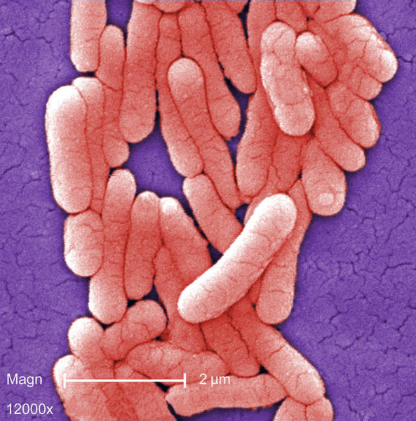 Wall Art - Photograph - Salmonella Typhimurium Bacteria, Sem by Science Source