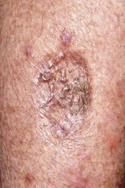 Wall Art - Photograph - Scar After Cancer Removal by Dr P. Marazzi/science Photo Library