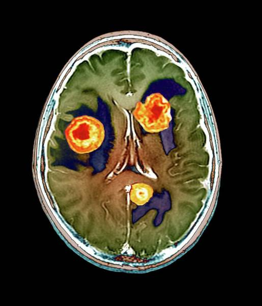 Resonance Wall Art - Photograph - Secondary Brain Cancer by Zephyr/science Photo Library