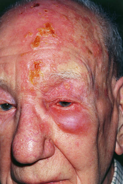 Sequence Photograph - Shingles Attack On Head Of Elderly Male by Dr P. Marazzi/science Photo Library