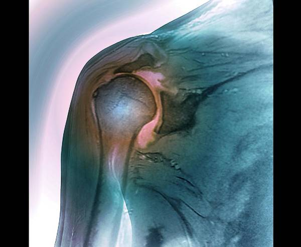 Wall Art - Photograph - Shoulder Tendon Disorder by Zephyr/science Photo Library