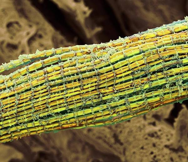 Skeletal Muscle Photograph - Skeletal Muscle Fibres by Steve Gschmeissner