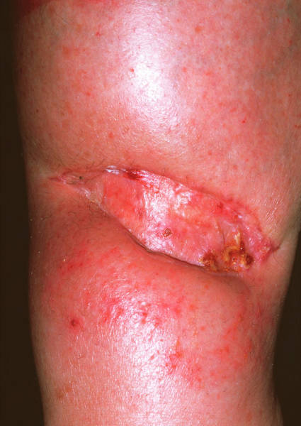Wall Art - Photograph - Skin Graft On Leg by Dr P. Marazzi/science Photo Library