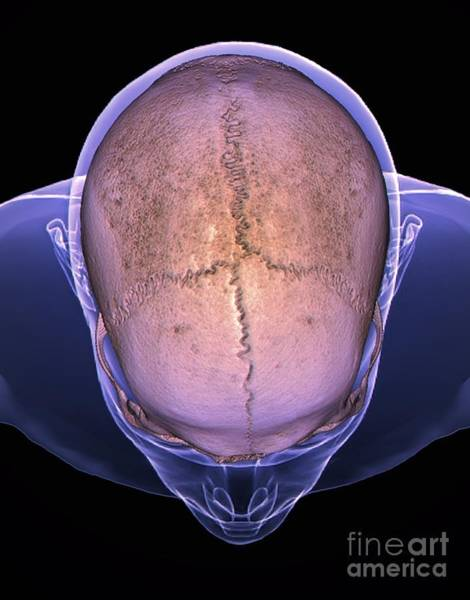 Temporal Bone Photograph - Skull Sutures, 3d Ct Scan by Zephyr