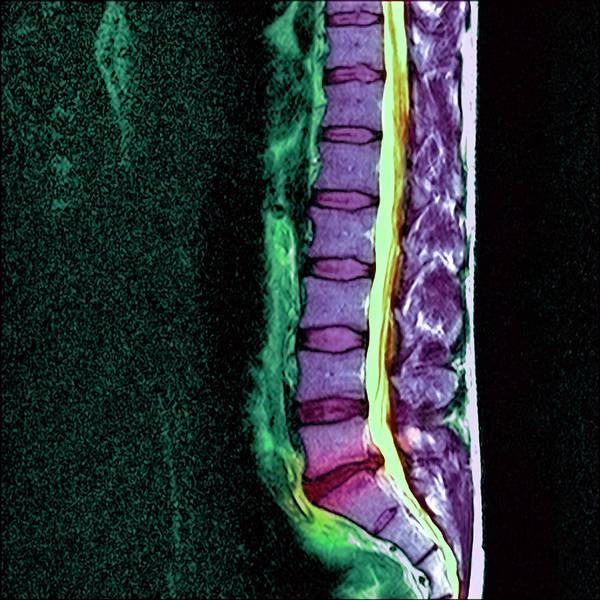 Lumbar Vertebra Photograph - Slipped Disc by Simon Fraser/science Photo Library