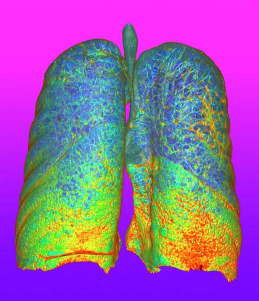 Wall Art - Photograph - Smoker's Lungs And Emphysema by K H Fung/science Photo Library