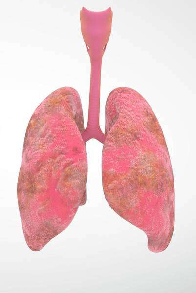 Wall Art - Photograph - Smoker's Lungs by Ella Maru Studio / Science Photo Library
