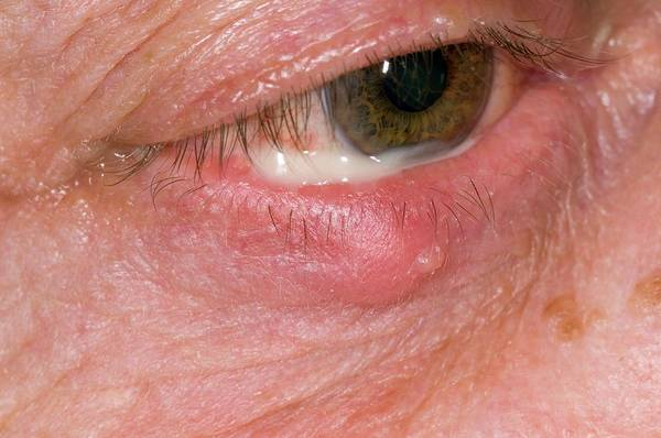 Stye Photograph - Stye On The Lower Eyelid by Dr P. Marazzi/science Photo Library