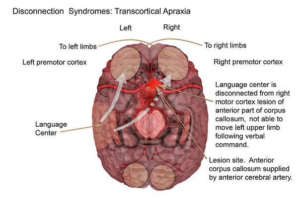Motor Cortex Photograph - Transcortical Apraxia by Carol & Mike Werner