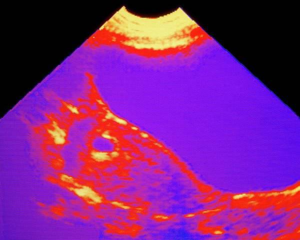 Ultrasound Scan: 4-6 Week Pregnancy Art Print