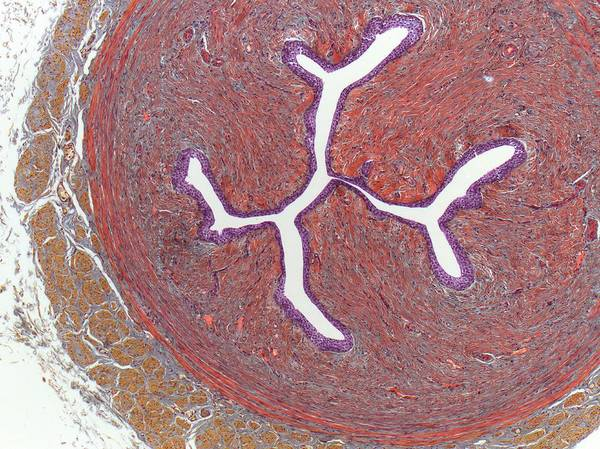 Micrography Wall Art - Photograph - Ureter by Steve Gschmeissner