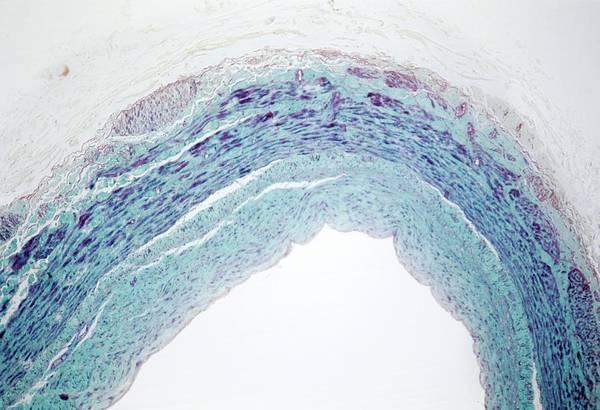 Light Microscope Wall Art - Photograph - Varicosed Vein by Alain Pol - Cnri