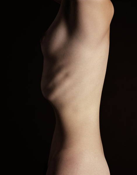 Anorexia Photograph - Weight Loss by Kate Jacobs/science Photo Library