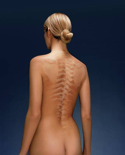 Anatomical Position Wall Art - Photograph - Woman's Back by Kate Jacobs/science Photo Library