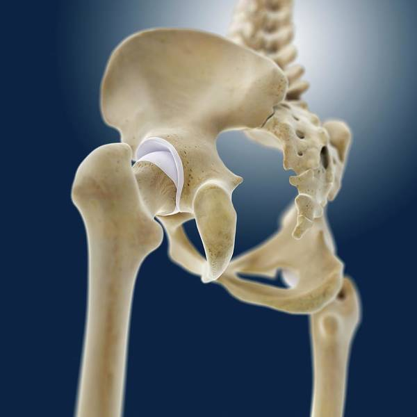 Wall Art - Photograph - Hip Anatomy by Springer Medizin/science Photo Library