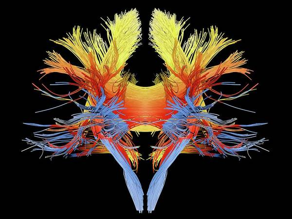 Wall Art - Photograph - White Matter Fibres Of The Human Brain by Alfred Pasieka