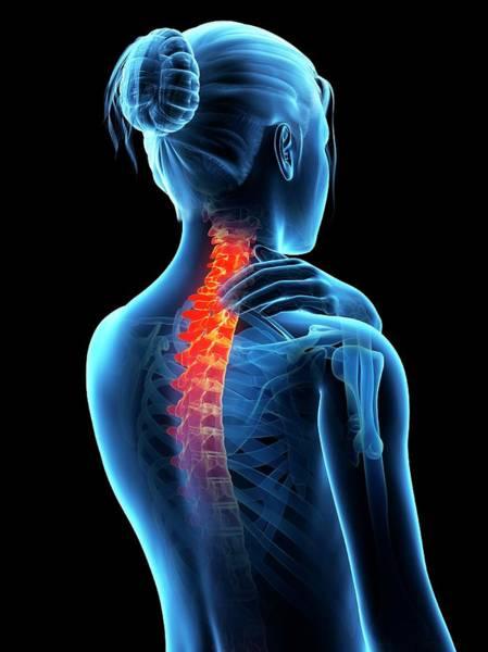 Skeletal System Photograph - Human Neck Pain by Sebastian Kaulitzki