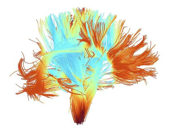 Mri Scan Wall Art - Photograph - White Matter Fibres Of The Human Brain by Alfred Pasieka