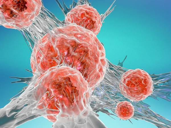 Wall Art - Photograph - Cancer Cell by Alfred Pasieka/science Photo Library