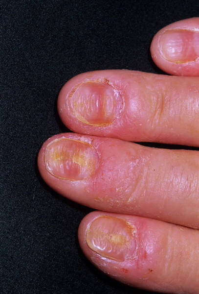 Fingernail Wall Art - Photograph - Psoriasis by Dr P. Marazzi/science Photo Library