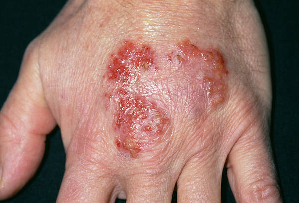 Wall Art - Photograph - Psoriasis by Dr P. Marazzi/science Photo Library