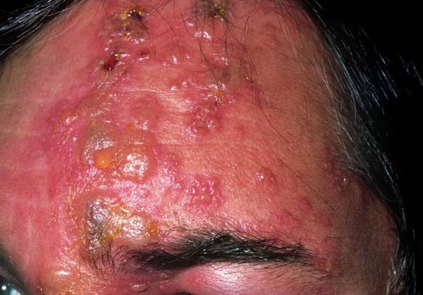 Patient Photograph - Shingles Rash by Dr P. Marazzi/science Photo Library