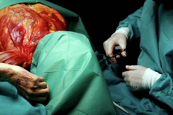 Morgue Photograph - Autopsy Examination by Mauro Fermariello/science Photo Library