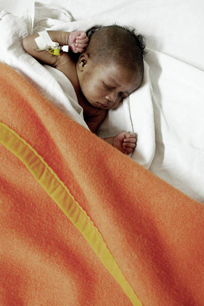 Sleep Disorder Photograph - Baby With Atresia by Mauro Fermariello/science Photo Library
