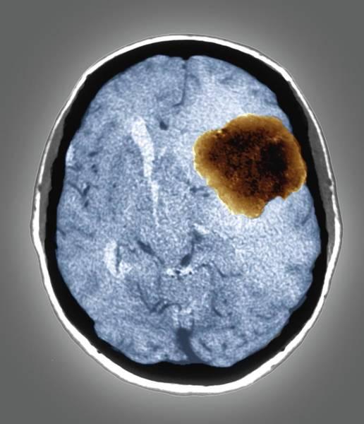 Brain Tumor Wall Art - Photograph - Benign Brain Tumour by Zephyr