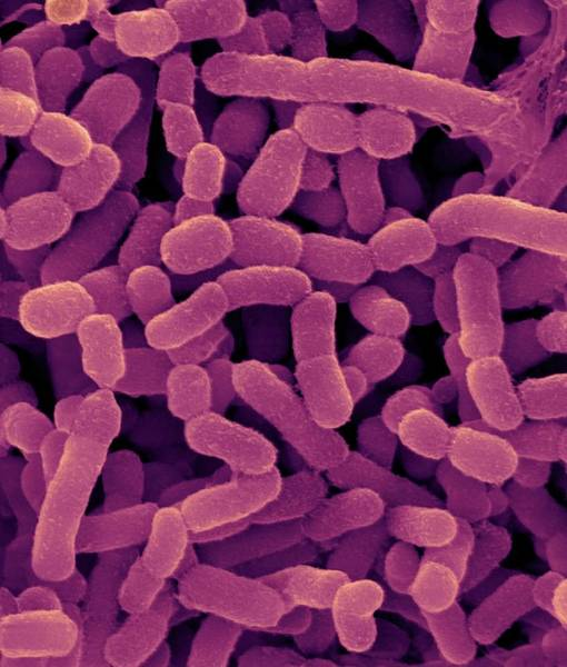 Wall Art - Photograph - Bovine Rumen Bacterium by Dennis Kunkel Microscopy/science Photo Library