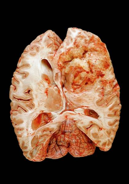 Wall Art - Photograph - Brain Cancer by Medimage/science Photo Library