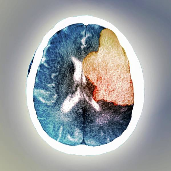 Cutout Wall Art - Photograph - Brain In Stroke by Zephyr/science Photo Library