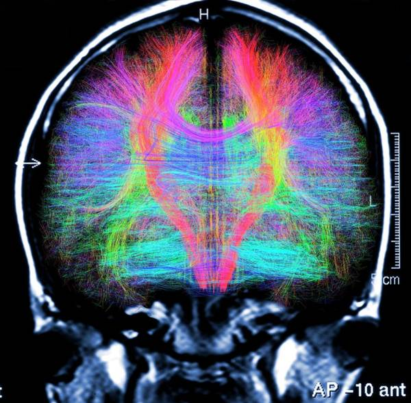 Resonance Wall Art - Photograph - Brain Mri And White Matter Fibres by Alfred Pasieka/science Photo Library