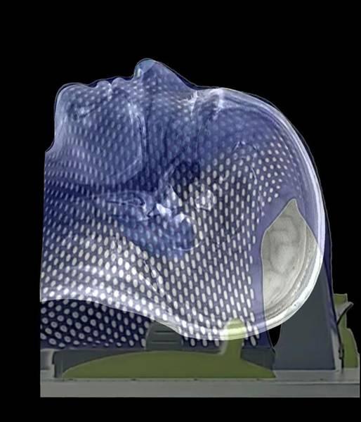 Brain Tumor Wall Art - Photograph - Brain Tumour Radiotherapy Treatment by Zephyr
