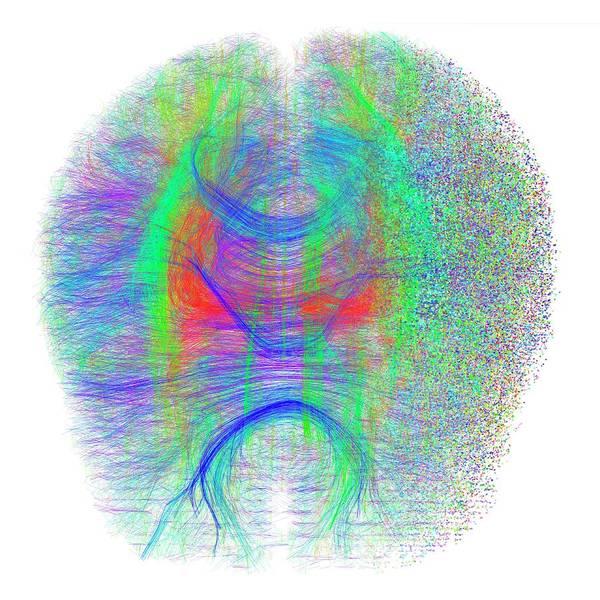Disintegration Wall Art - Photograph - Brain White Matter Fibres Dissolving by Alfred Pasieka/science Photo Library