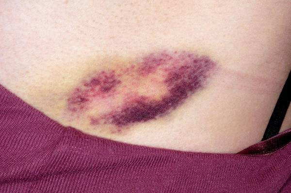 Wall Art - Photograph - Bruise by Dr P. Marazzi/science Photo Library