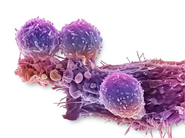 Antigen Photograph - Cancer Cell And T Lymphocytes by Steve Gschmeissner