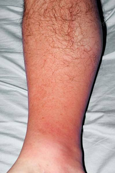 Inflammation Wall Art - Photograph - Cellulitis Of The Leg by Dr P. Marazzi/science Photo Library