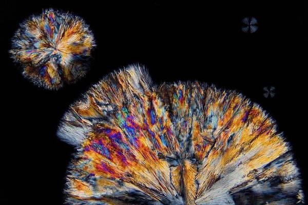 Cholesterol Photograph - Cholesterol Crystals by Antonio Romero