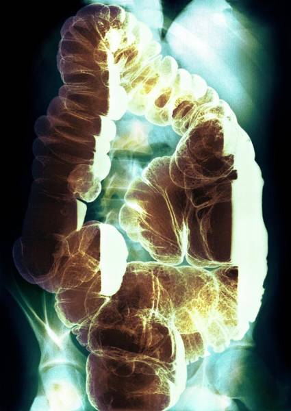 Wall Art - Photograph - Colon Polyps by Medimage/science Photo Library