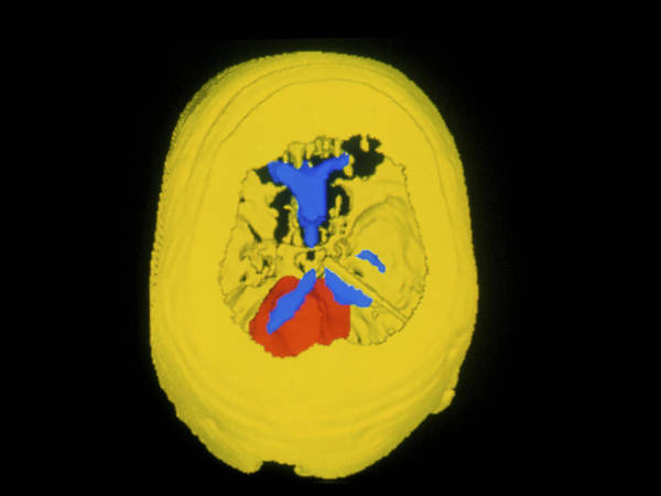 Brain Cancer Wall Art - Photograph - 3-d Ct Scan Of Medulloblastoma Brain Tumour by Cnri/science Photo Library