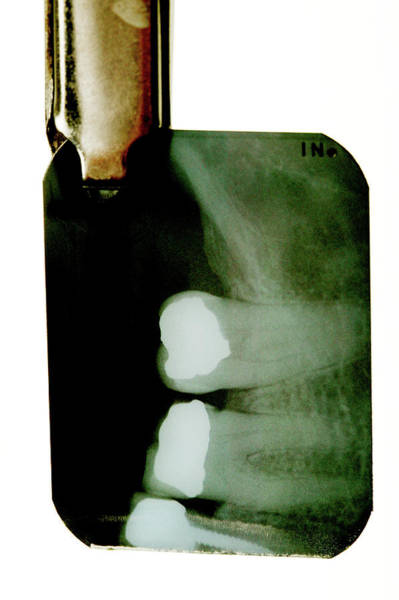 Filling Photograph - Dental X-ray by Mauro Fermariello/science Photo Library
