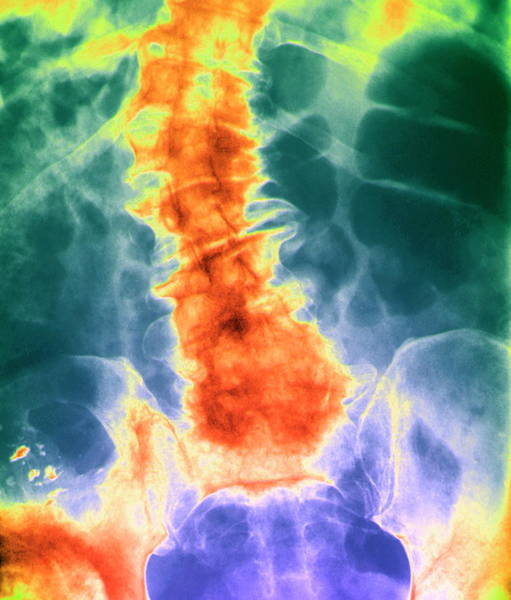 Wall Art - Photograph - Diseased Spine by Zephyr/science Photo Library